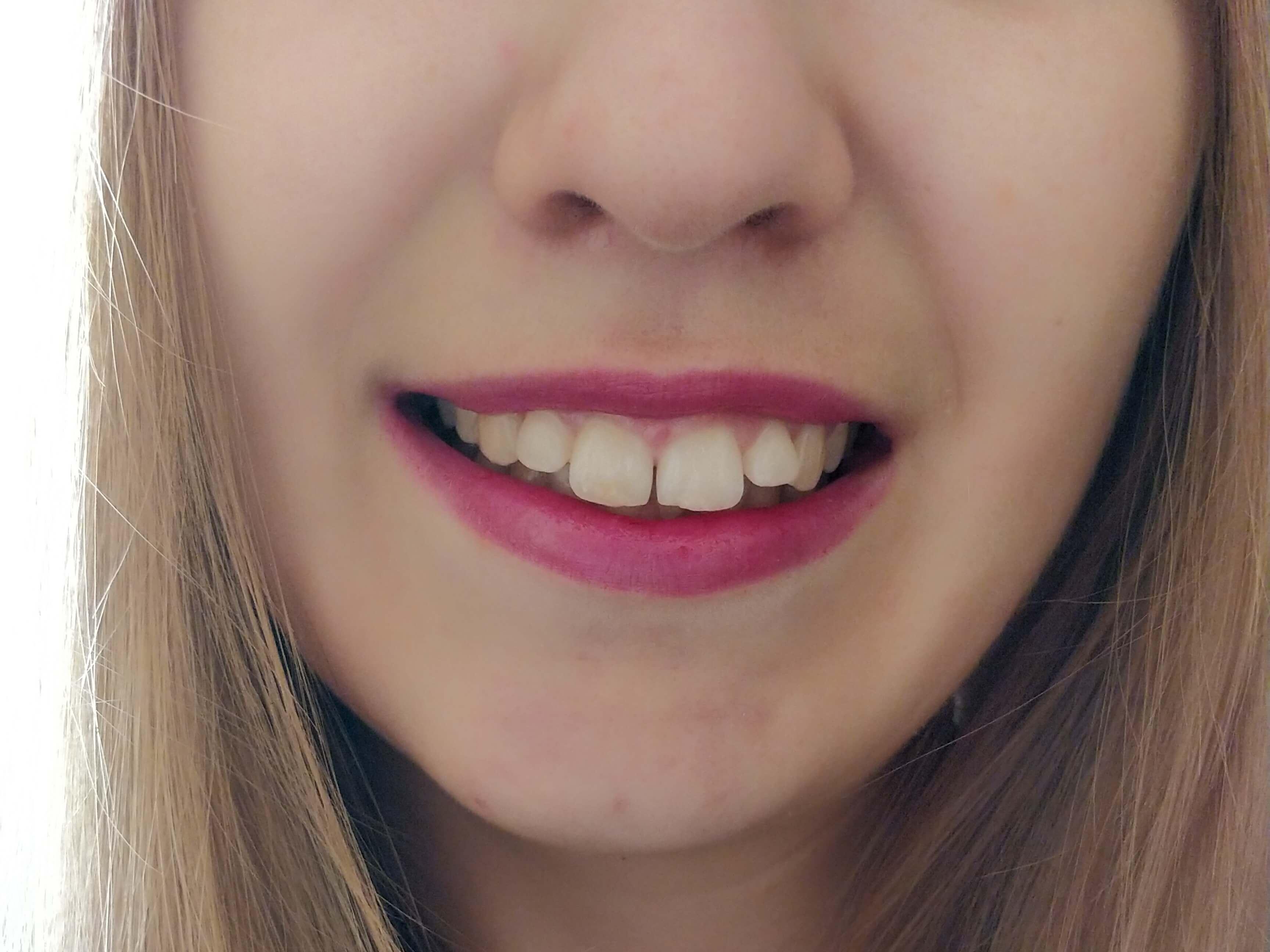 redresser dents appareil dentaire adulte - Porter un appareil dentaire quand on est adulte