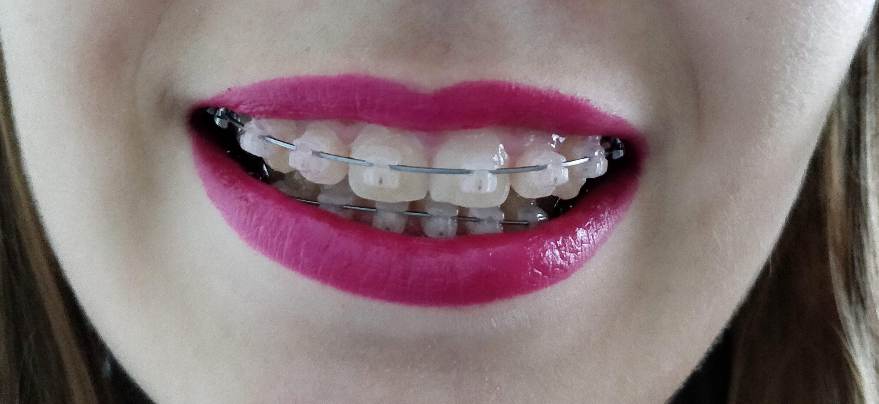 bagues appareil dentaire adulte - Porter un appareil dentaire quand on est adulte